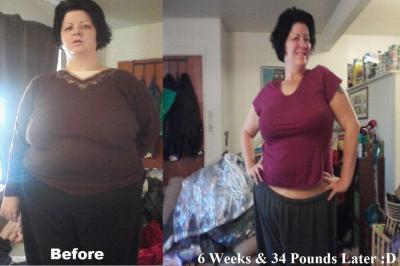 Weight loss treatments galway