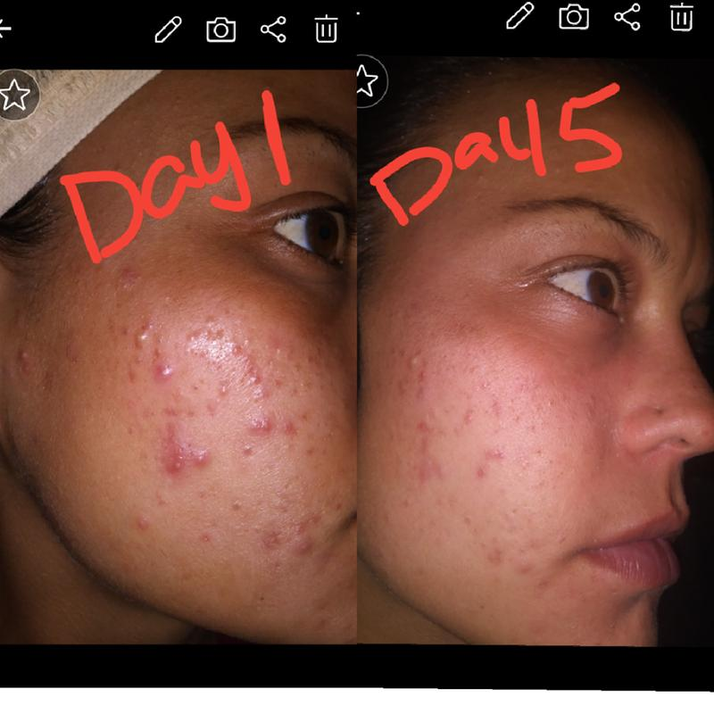 Adapalene Topical Retinoid Acne Treatment Differin Gel