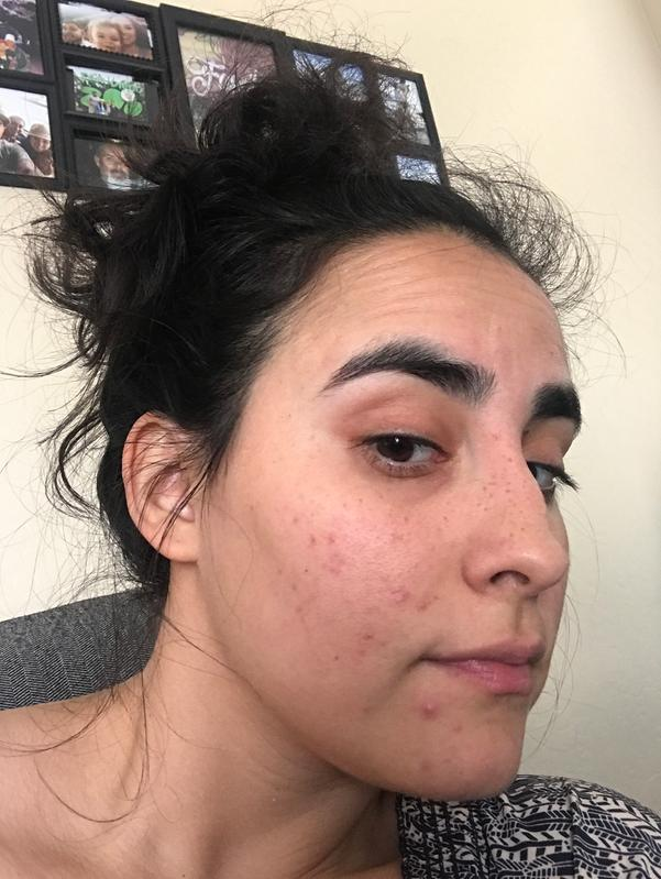 Something can noxzema help with facial blemishes