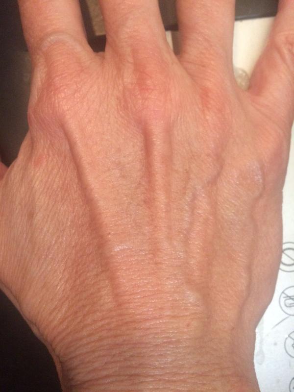 Consult Beaute Super Size Volumagen Hand Treatment Cream 8 oz
