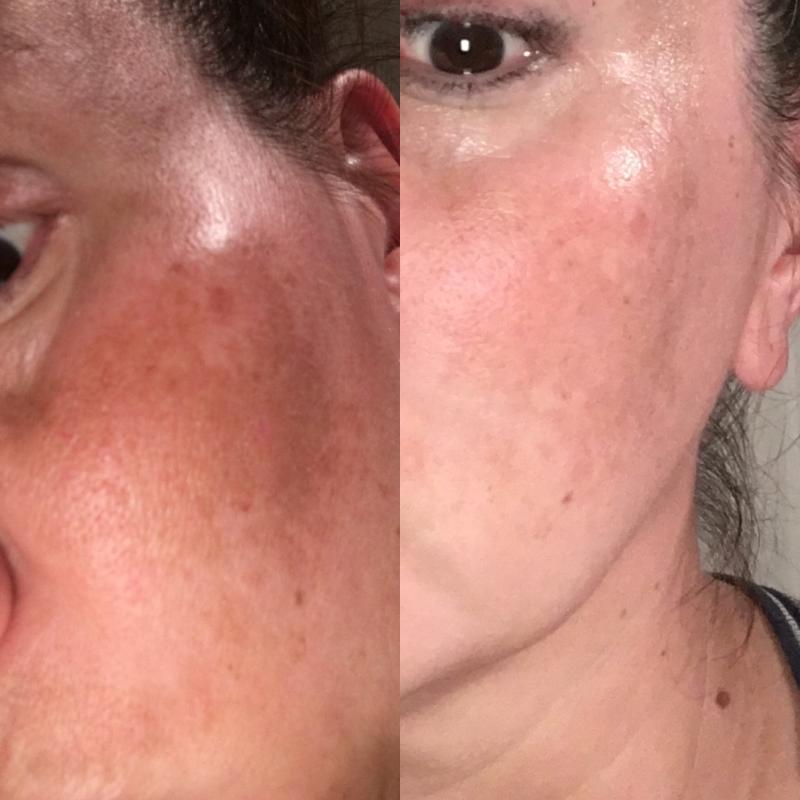 Palmer S Skin Success Anti Dark Spot Fade Cream For All Skin Types