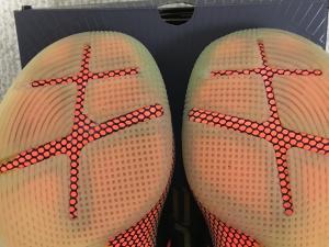 両足の比較写真。(右:左足、左:右足)