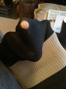 Hole in sock